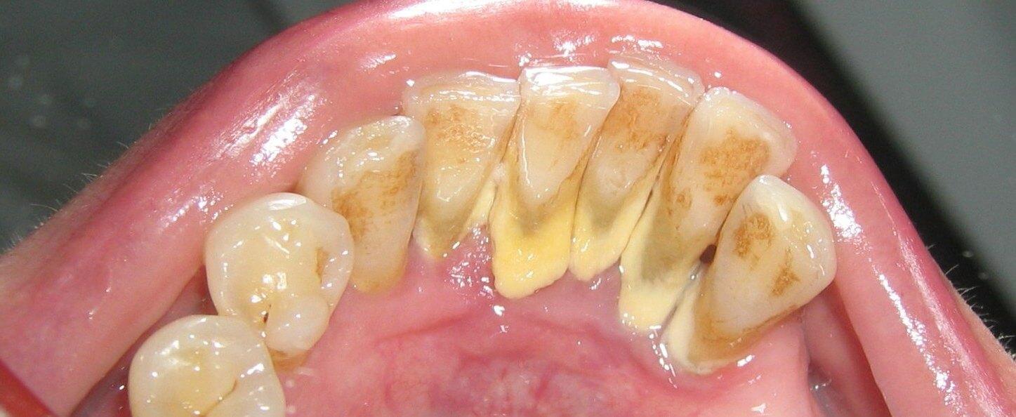 основные причины зубного камня у людей