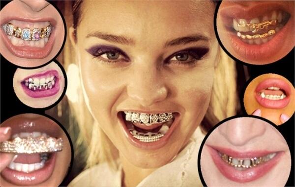 виды грилз для зубов