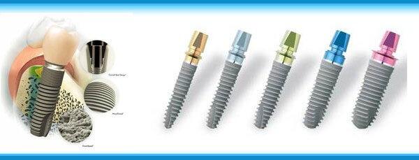 зубные имплантаты Xive Friadent