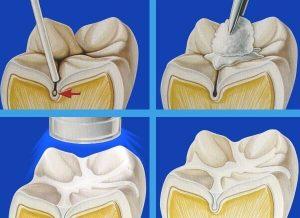 процедура по запечатыванию фиссур зубов у ребенка