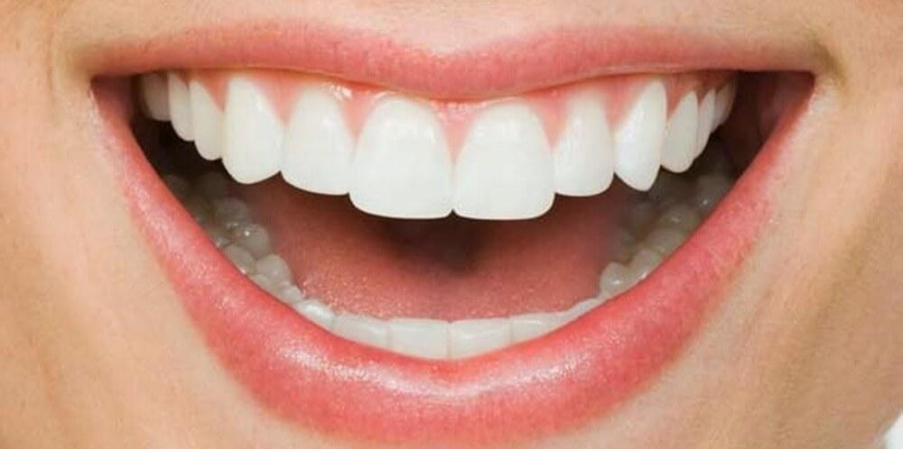 процедура реминерализации зубов человека