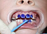 серебрение молочного зуба