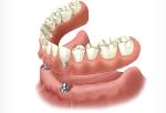 зубные протезы покрывные