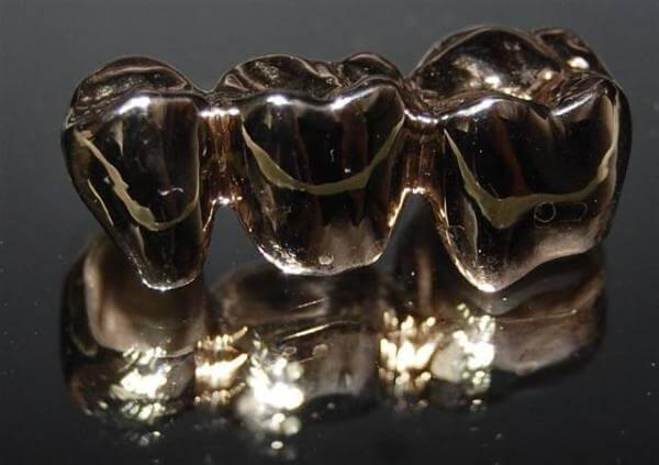 зубной мост из металла
