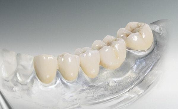 зубной мост из металлопластмассы