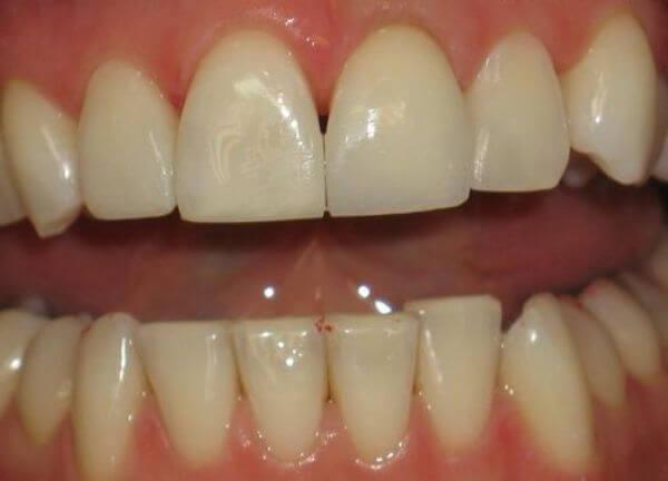 светоотверждаемые пломбы на зубы