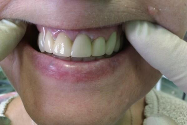 мнения пациентов о бюгельных протезах на нижнюю челюсть