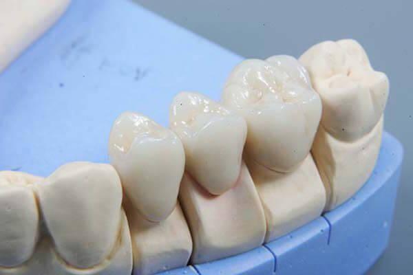виды зубных коронок из керамики