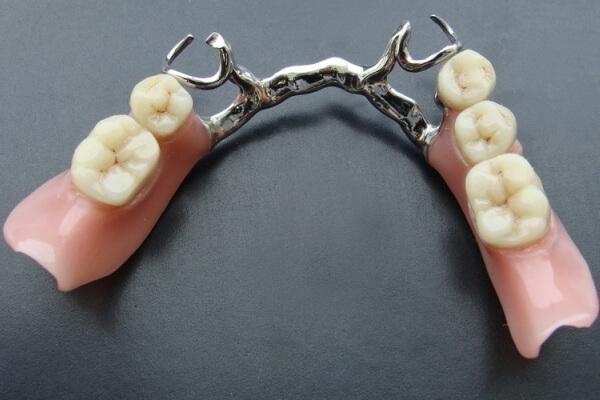 разновидности зубных бюгельных протезов