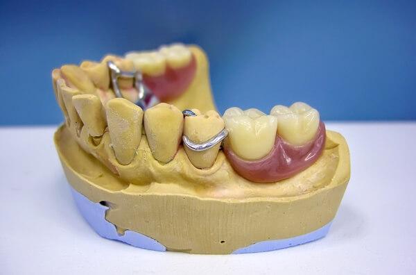 вид забного протеза бюгельного типа