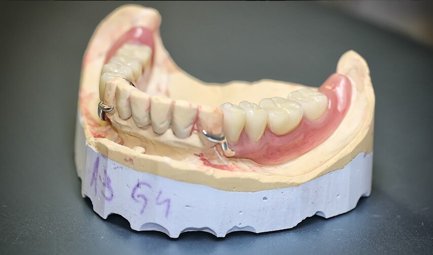 фото бюгельного зубного протеза на нижнюю челюсть