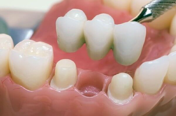 особенности зубных мостовидных протезов