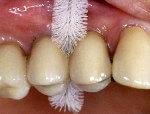 как пользоваться ершиками для зубов