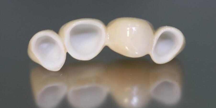 керамическая коронка на зуб пациента