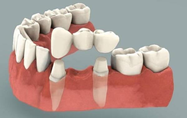 разновидности зубных мостов
