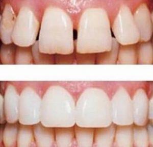 установка на зубы виниров для лечения трем