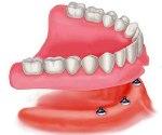 протезирование зубов при полном отсутствии