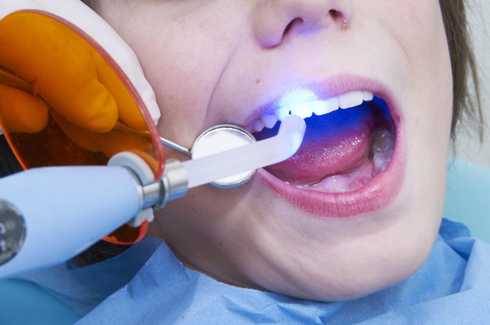 световые пломбы на передних зубах у пациента