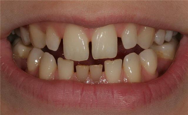 тремы между зубам у человека
