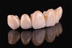 стоимость зубной коронки из керамики