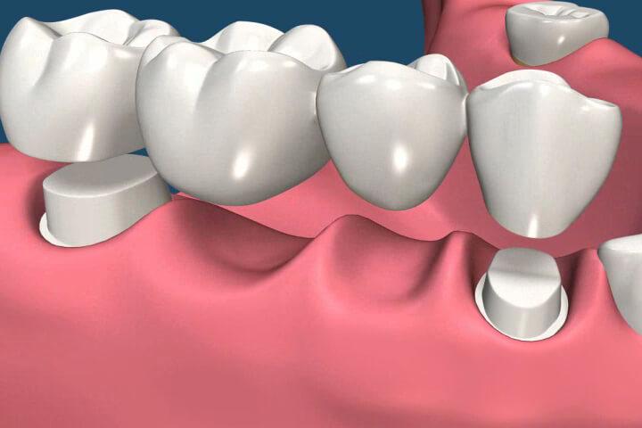 существующие виды зубных мостов