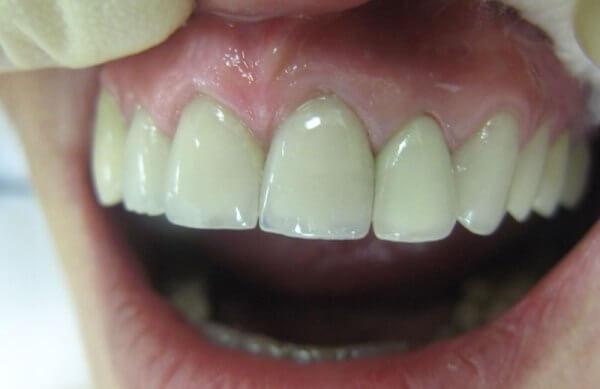 циркониевые зубные мосты