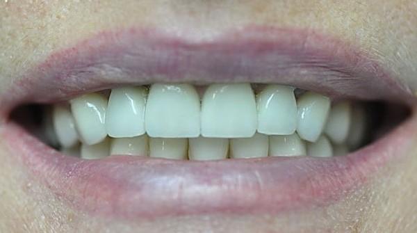керамические зубные коронки для передних зубов
