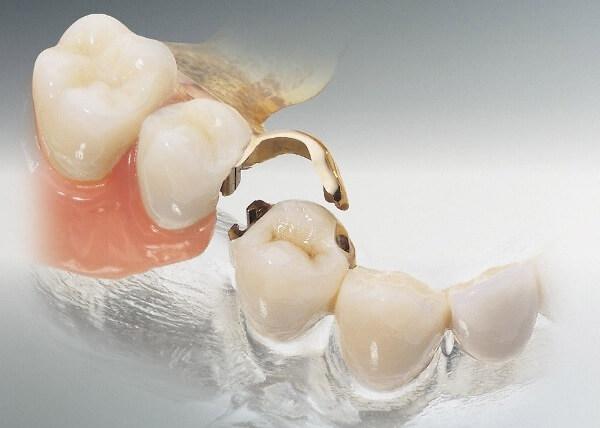 зубной мостовидный протез на замках