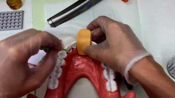 сколько стоит поставить или заменить ретейнеры