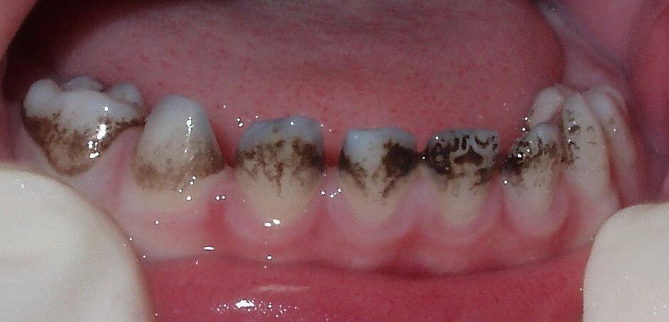 черный налет на зубах у вашего ребенка