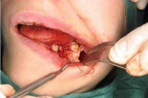 проблемы после операции резекции верхушки корня зуба