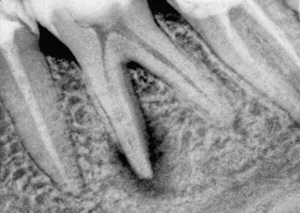 история болезни фиброзный периодонтит