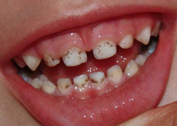 Вред зубам при отбеливании