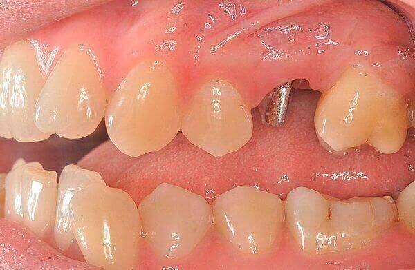 сколько прослужит вкладка под зубной коронкой