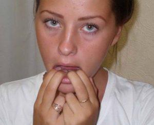 лечение болей в челюсти при жевании