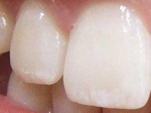 последствия злоупотребления перекисью водорода для отбеливания зубов