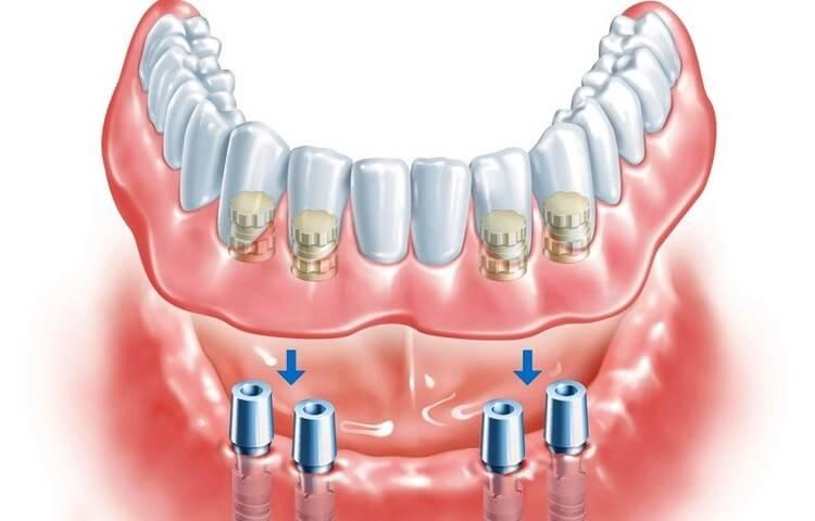 где поставить покрывной протез - выбираем стоматологию