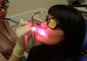 отзывы лазерное отбеливание зубов