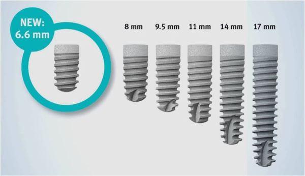 ассортимент зубных имплантов XiVE