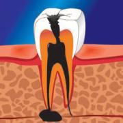 киста зуба лечение в домашних условиях
