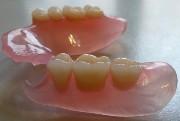 протезы зубные нейлоновые фото цена