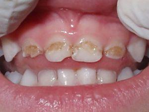 формы заболевания зубов у детей - эрозивная гипоплазия эмали