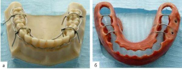 шины для лечения перелома нижней челюсти