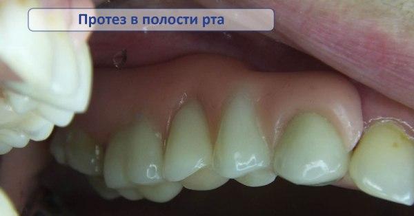 в чем минусы зубных протезов квадротти