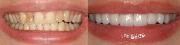 быстро поставить виниры на зубы