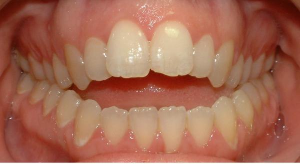 почему зубы разрушаются