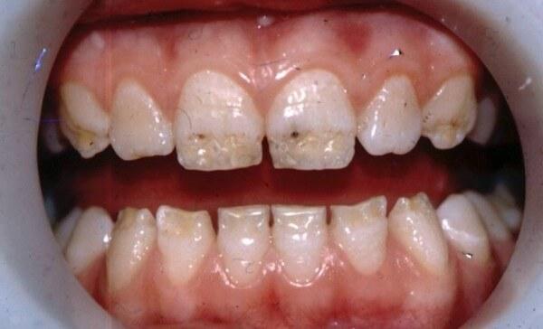 как выглядит гипоплазия эмали зубов