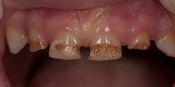 разновидности гипоплазии эмали зубов