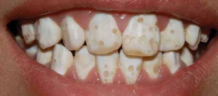 гипоплазия эмали зубов и способы борьбы с ней