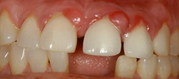 гранулема зуба - способы лечения дома и в клинике